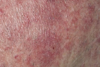 Rosacea rash on the face
