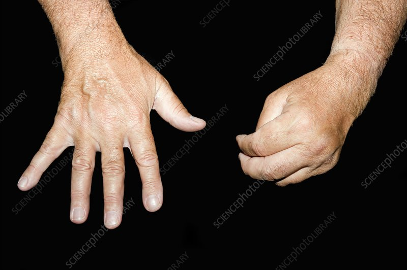 Hands in Parsonage-Turner syndrome