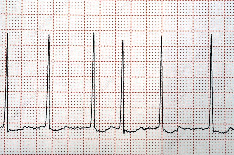 Atrial fibrillation of the heartbeat