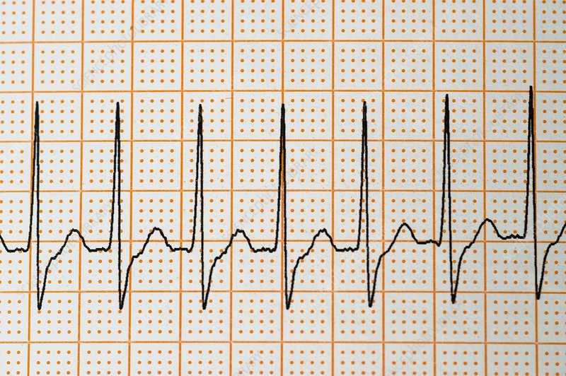 Junctional rhythm of the heartbeat