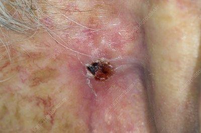 Skin cancer behind the ear