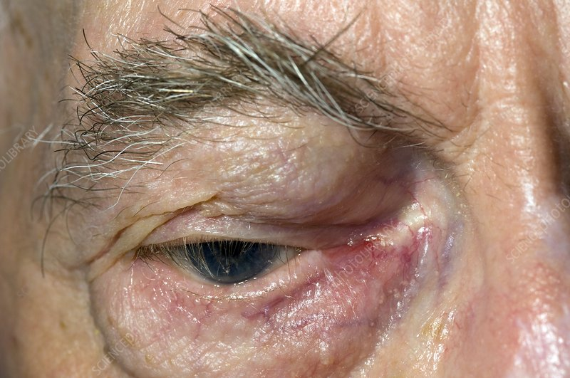 Blocked tear duct with eyelid swelling