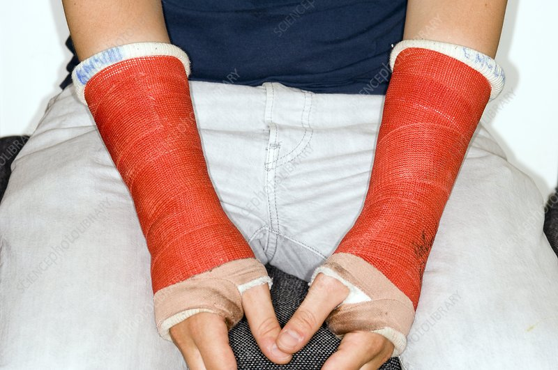 Broken wrists in plaster casts