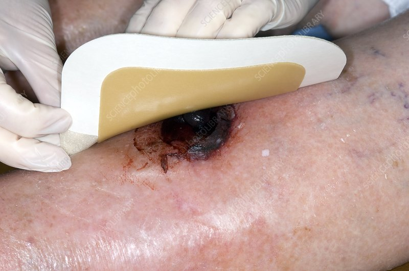 Treating haematoma after blunt injury