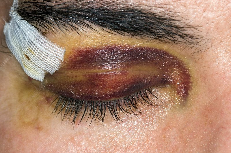Black eye from a sport's injury