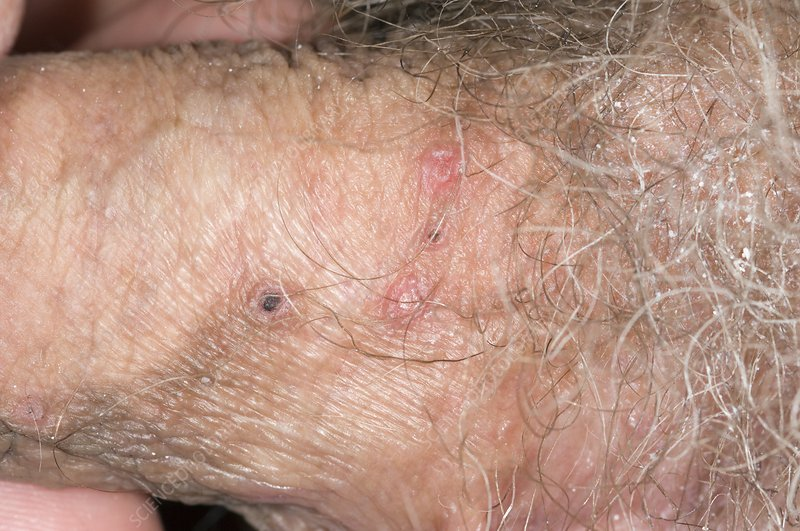 Shingles lesions on the penis