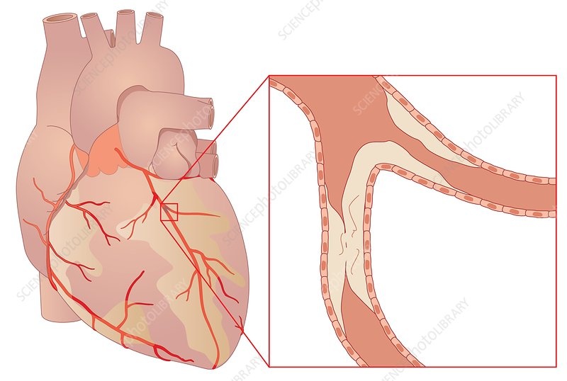 Narrowed coronary artery, artwork