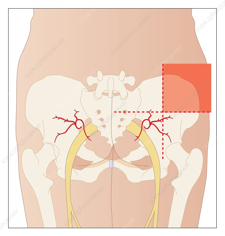Buttock Injection Site: Dorsogluteal Injection Site, Artwork