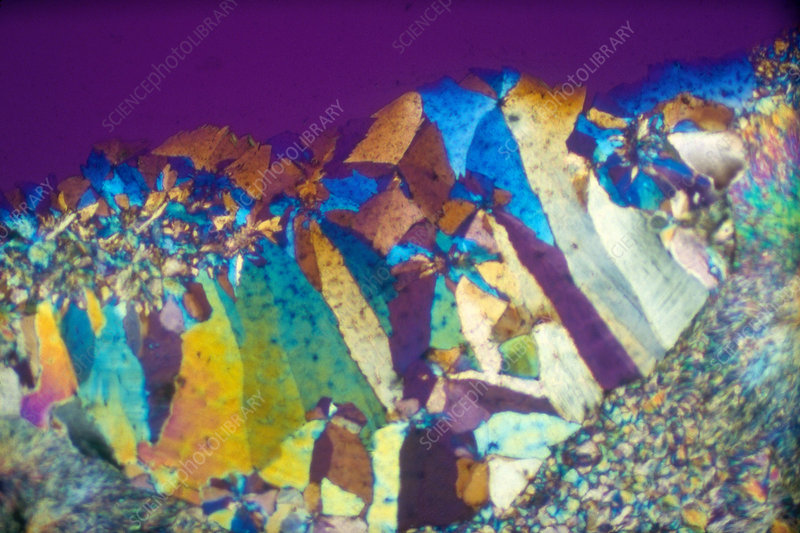Coumadin, Polarized Light Micrograph