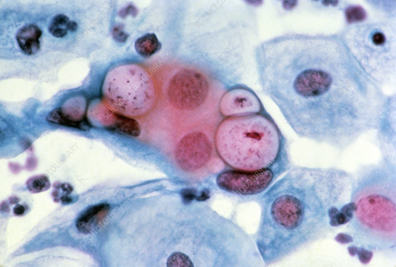 LM of cervical smear showing Chlamydia in