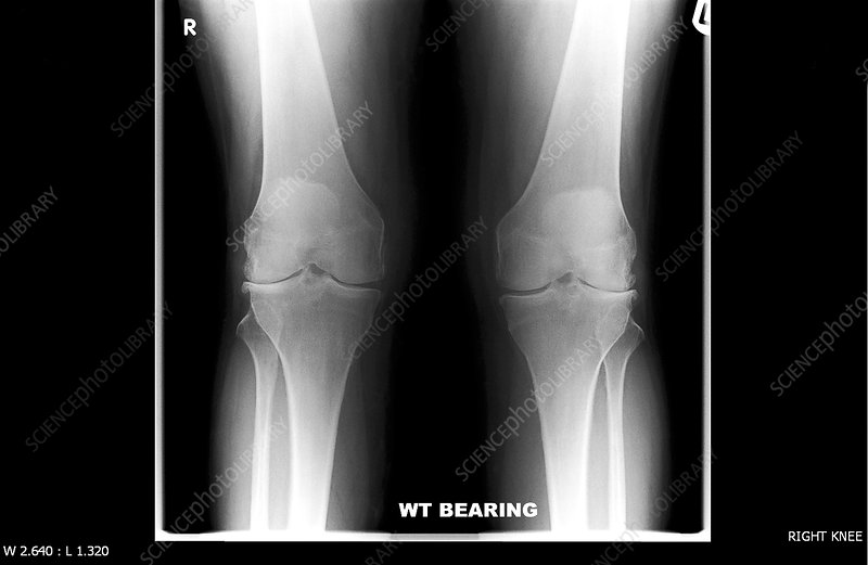 Knees before replacement surgery, X-ray