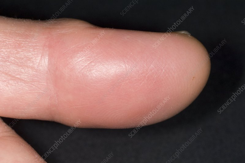 Abscess in pulp space of the finger
