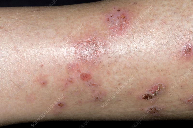 Spongiotic dermatitis on the leg