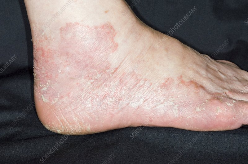 Eczema on the foot