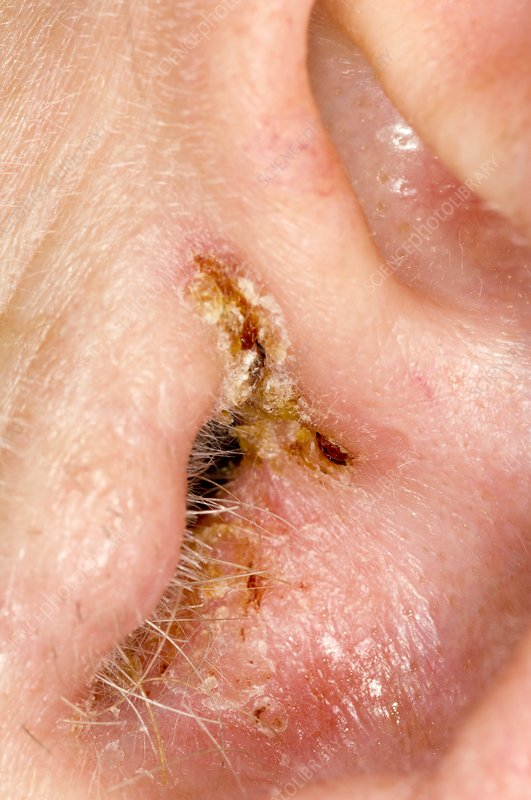 Eczema in the ear canal