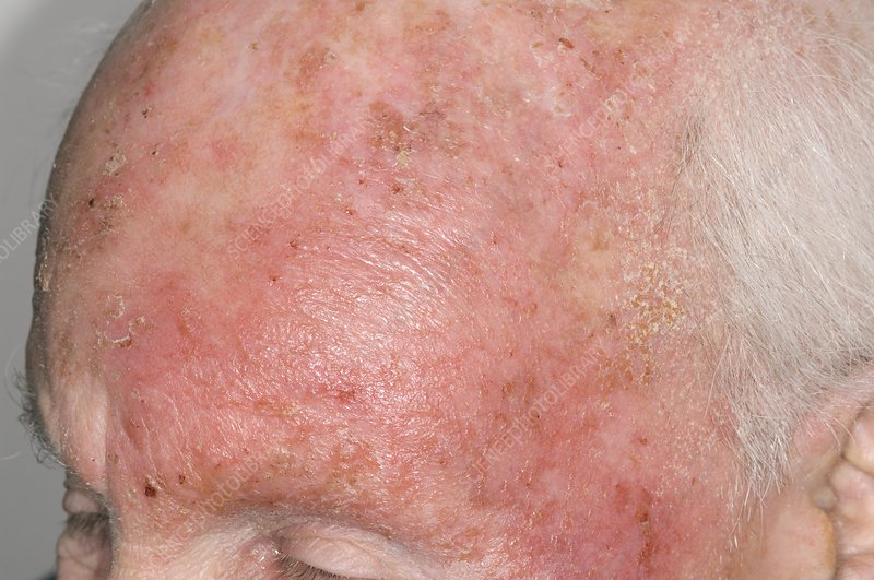 Dermatitis of the head from drug allergy