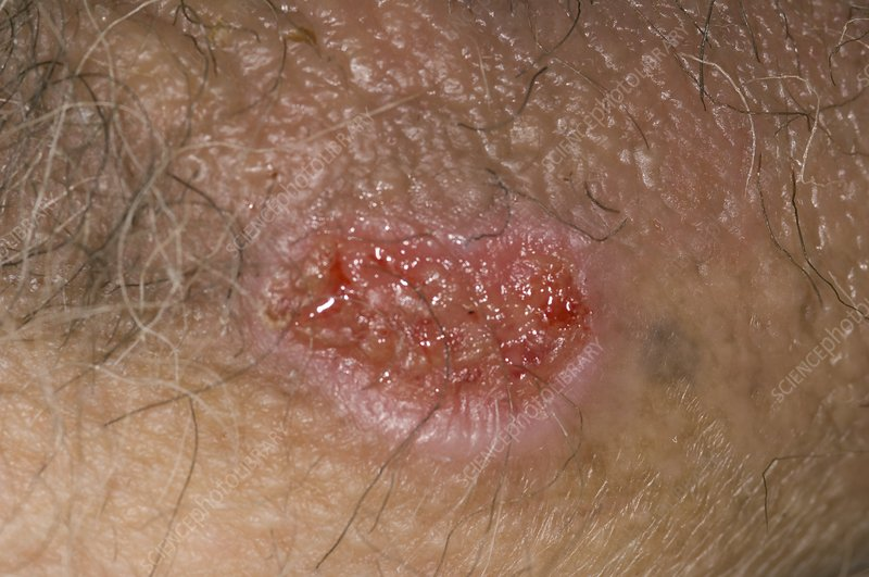 Genital ulcer from drug reaction