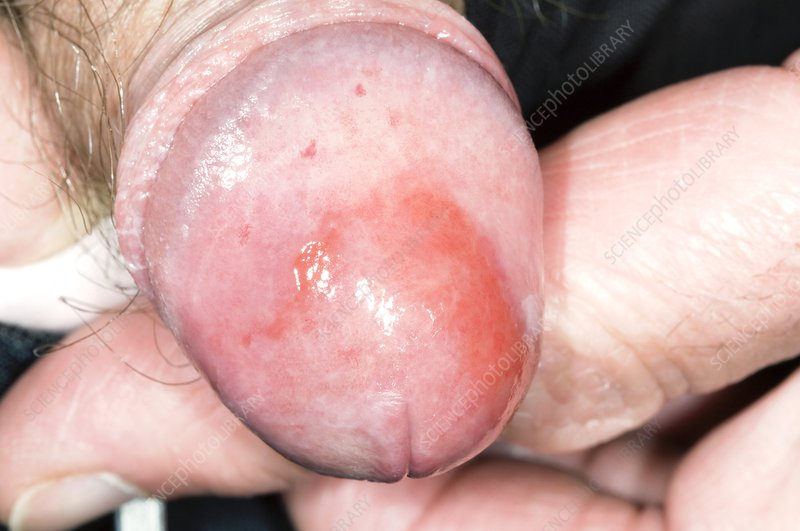 Inflamed Penis Tip 116