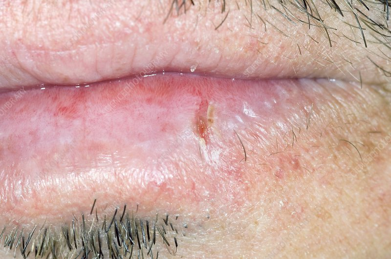 Fissure (crack) in the lip