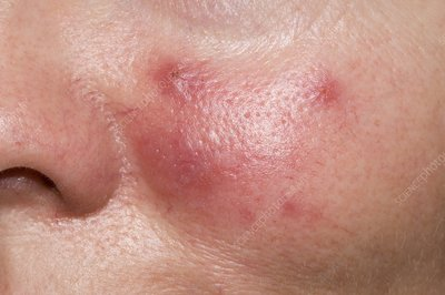 Acne rosacea on the cheek