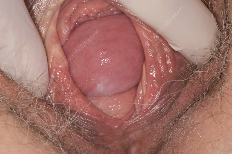 Prolapse of the vaginal wall