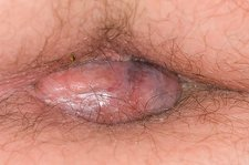 Thrombosed external pile (haemorrhoid)