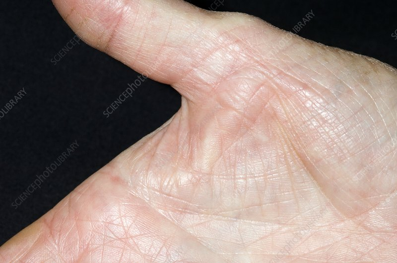 Dupuytren's contracture of the thumb