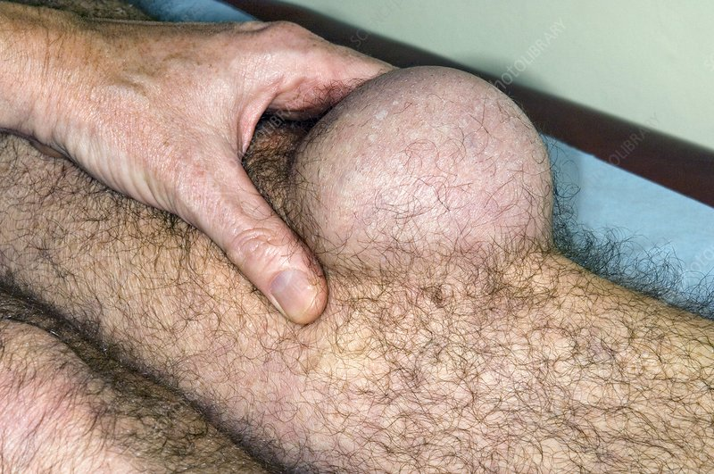 Pre-patellar bursitis in the knee