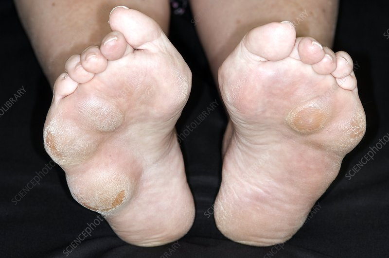 Rheumatoid nodules on soles of feet