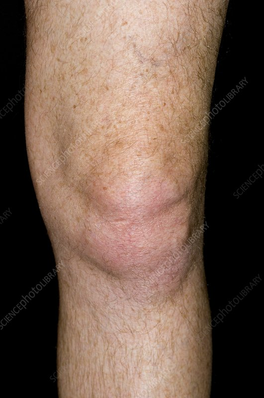 Gout of the knee