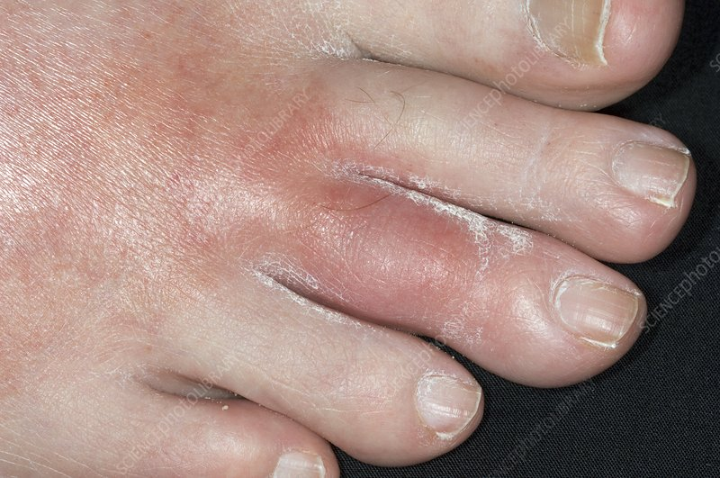 Gout of the middle toe