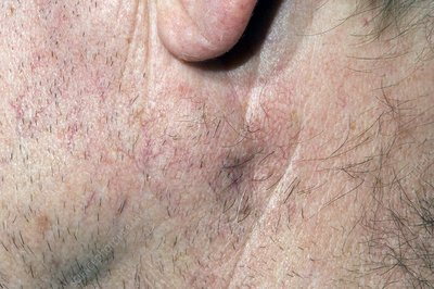 Basal cell skin cancer spread to lymph