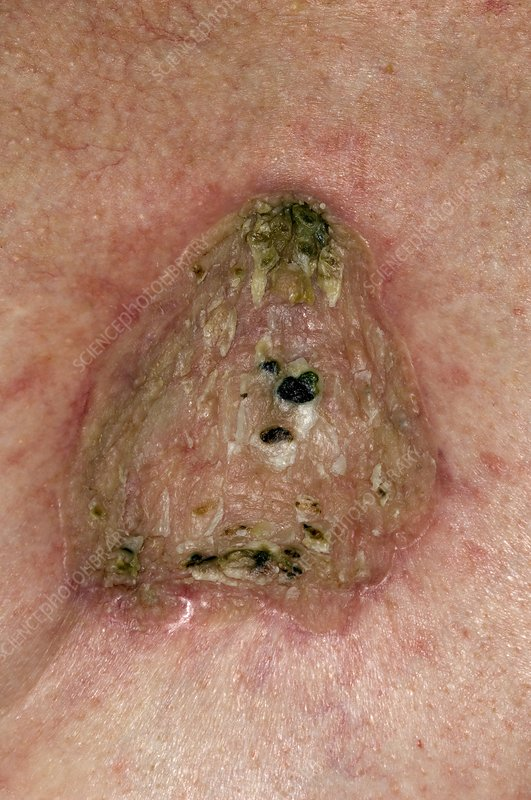Basal cell skin cancer on the chest