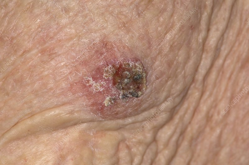 Squamous cell cancer on the arm