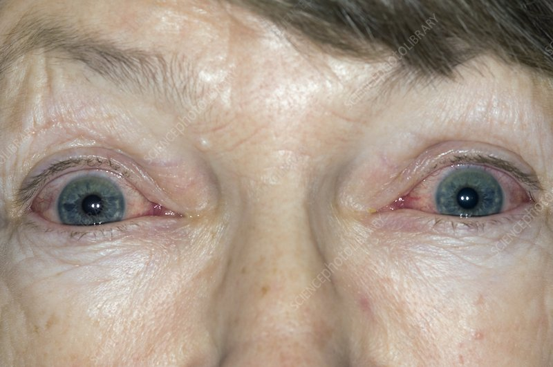 Red eyes from viral conjunctivitis