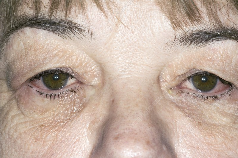 Red eyes from bacterial conjunctivitis
