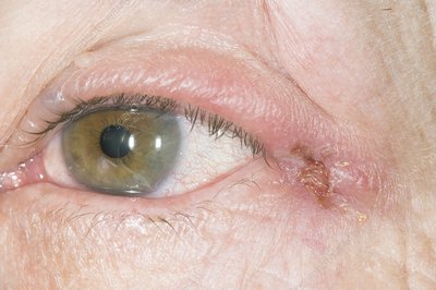 herpes simplex 1 cold sores definition