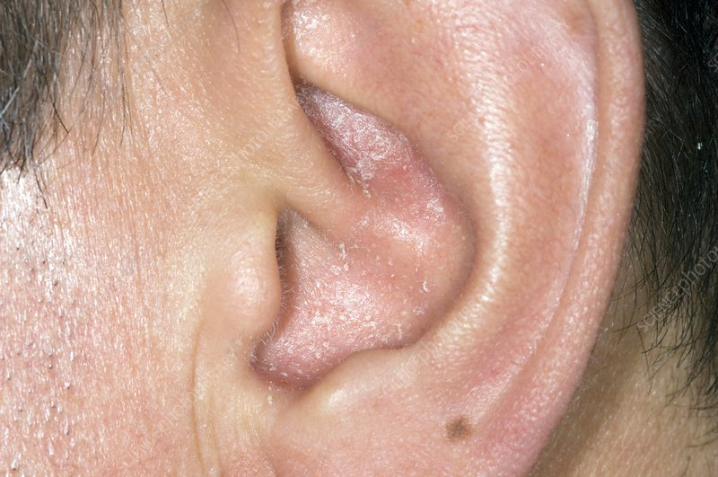 psoriasis in ear canal uk