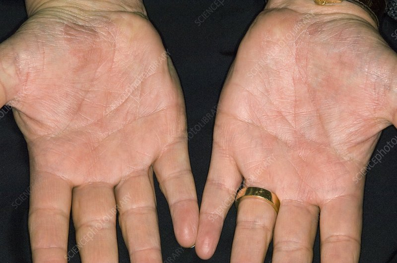 Psoriasis on the palm of the hands