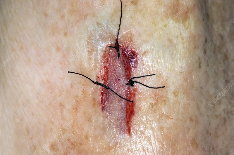 Sutured flap laceration on the arm