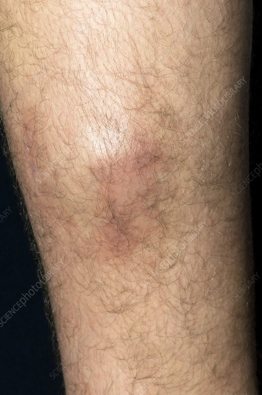 Bruised calf from playing sport