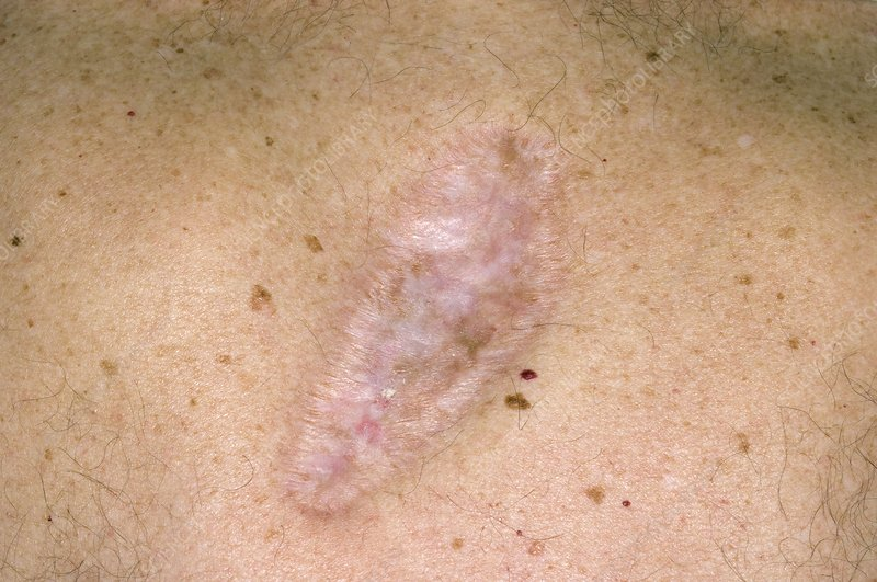 Scar On The Skin After Cancer Removal Stock Image C008 5761 Science Photo Library