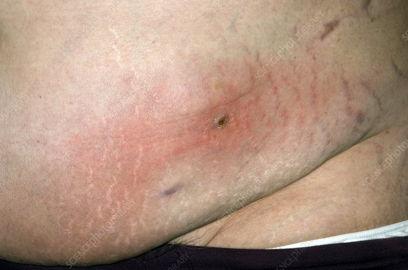 Cellulitis on the abdomen