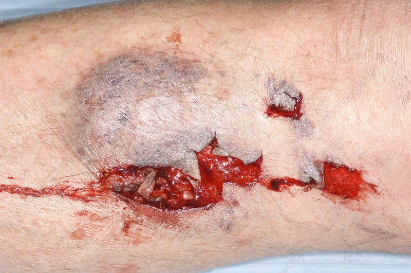 Skin wound after car accident