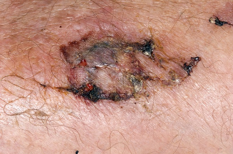 Skin wound healing after car accident