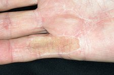 Scar from Dupuytrens contracture surgery