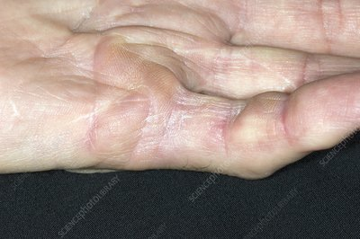 Failed Dupuytrens contracture surgery