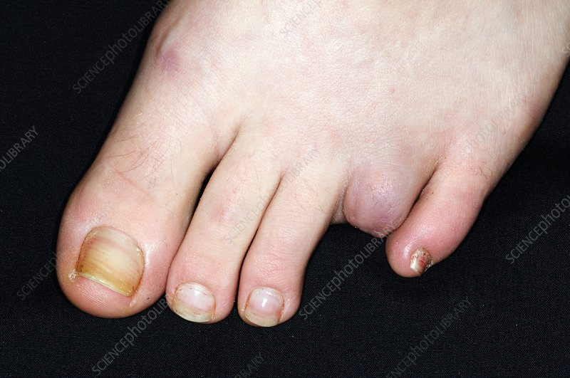 Amputated toe due to injury