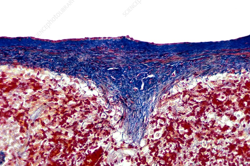Smooth muscle and collagen fibers. LM