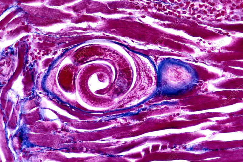 Parasitic Nematode encysted in muscle